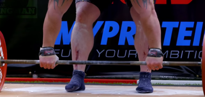 bloody shins while deadlifting