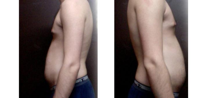 male skinny-fat profile picture